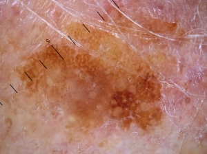 bland seb k forehead (1)
