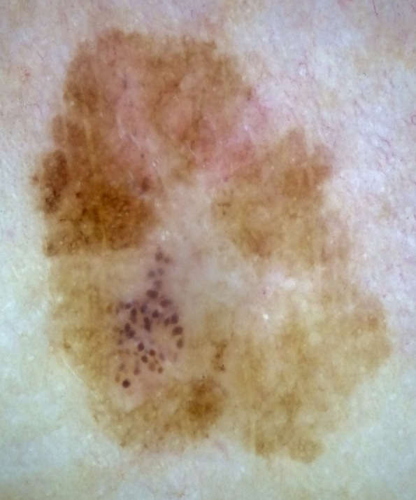 thin lentigo maligna melanoma on leg (2)