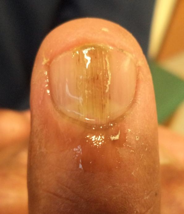nail 3 and 4 (1)