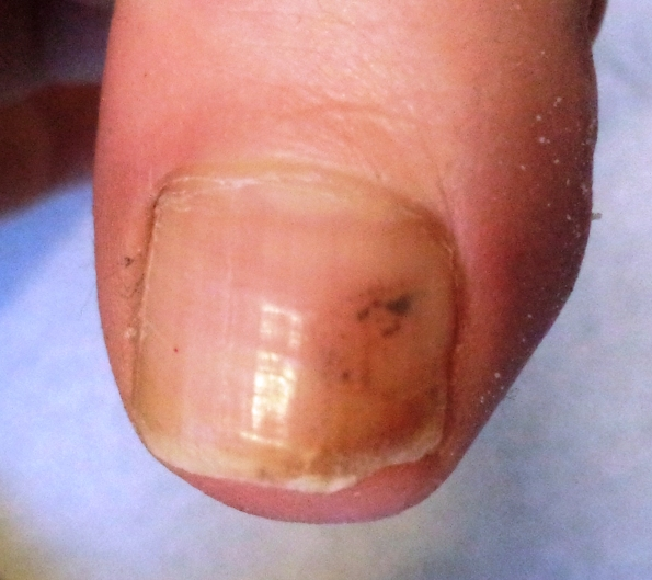 A black mark under the toe nail | Dermoscopy