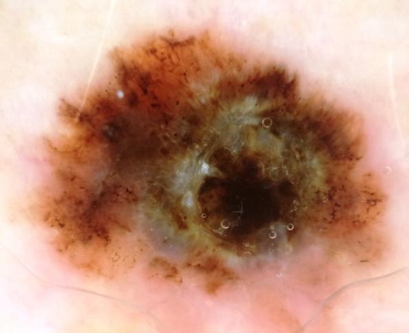 melanoma 1.9 shoulder (2)