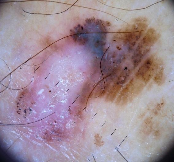 melanoma leg (1)